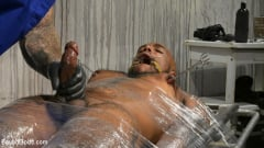 Micah Martinez - The UnorthoDoc: Jason Collins Hits Micah Martinez With BDSM Therapy | Picture (3)